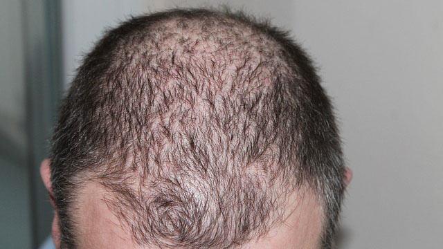petua rambut gugur