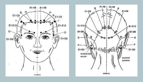 akupuntur untuk rawat sakit kepala
